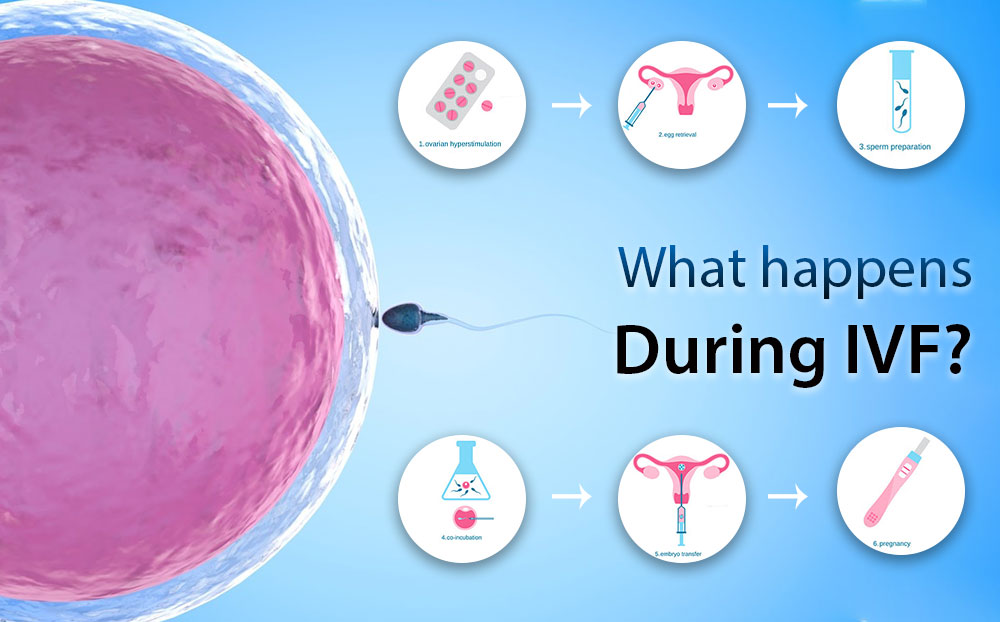 Know What happens during IVF Treatment in the best Fertility Centres